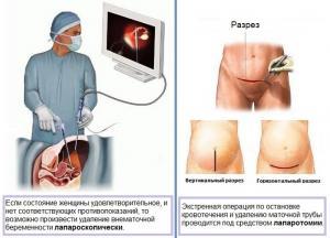 Изображение №5: Признаки внематочной беременности на ранних сроках - ЭКО-блог