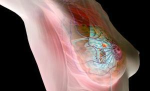 Изображение №1: Профилактика рака молочной железы: советы специалистов - ЭКО-блог