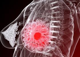 Профилактика рака молочной железы: советы специалистов - ЭКО-блог