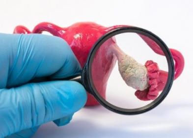 Симптомы и лечение поликистоза яичников - ЭКО-блог
