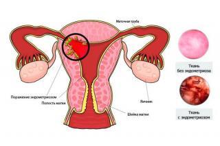 Изображение №2: Эндометриоз во время климактерия - ЭКО-блог