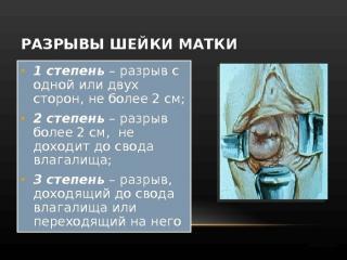 Изображение №1: Шейка матки после родов - ЭКО-блог