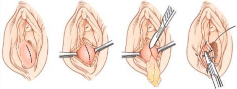 Изображение №2: Абсцесс бартолиновой железы - ЭКО-блог