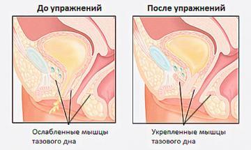 Изображение №1: Упражнения Кегеля: эффективная гимнастика для интимных мышц - ЭКО-блог