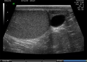 Изображение №3: Сперматоцеле - ЭКО-блог