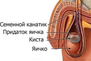 Изображение №1: Сперматоцеле - ЭКО-блог