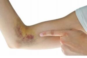 Изображение №1: HELLP-синдром - ЭКО-блог