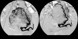 Изображение №3: Лечение миомы матки путем эмболизации маточных артерий - ЭКО-блог