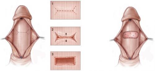 Изображение №2: Болезнь Пейрони. Какой метод лечения выбрать? - ЭКО-блог