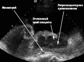 Изображение №2: Инфаркт плаценты - ЭКО-блог
