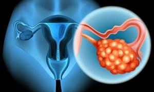 Изображение №0: Овариальный резерв яичников - ЭКО-блог