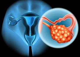 Овариальный резерв яичников - ЭКО-блог