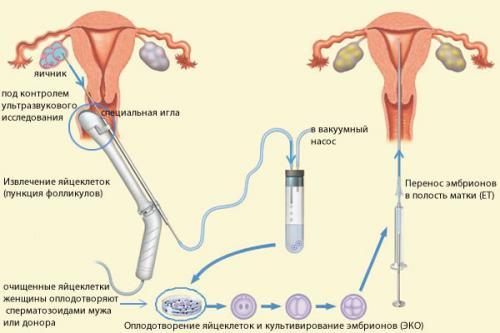 Изображение №2: Овариальный резерв яичников - ЭКО-блог