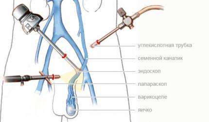 Изображение №2: Операция Мармара - ЭКО-блог