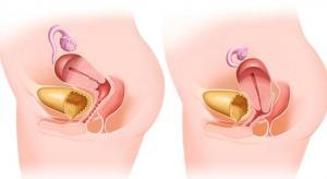 Изображение №1: Выпадение матки и влагалища - ЭКО-блог