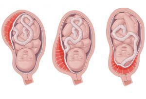 Изображение №1: Краевое предлежание плаценты - ЭКО-блог