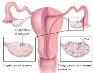 Изображение №3: Синдром поликистозных яичников (СПКЯ) - симтомы и лечение - ЭКО-блог