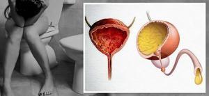 Изображение №0: Нарушения мочеиспускания в климактерии и принципы их лечения - ЭКО-блог