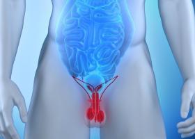 Что такое варикоцеле у мужчин - симптомы и лечение - ЭКО-блог