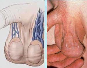 Изображение №1: Что такое варикоцеле у мужчин - симптомы и лечение - ЭКО-блог
