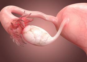 Слабый ответ яичников на стимуляцию - ЭКО-блог