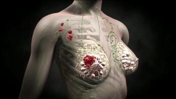 Изображение №0: Рак молочной железы и фертильность - ЭКО-блог