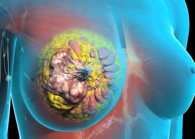 Рак молочной железы и фертильность - ЭКО-блог
