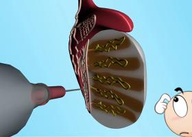 Техники получения сперматозоидов (PESA, MESA, TESA, TESE) - ЭКО-блог