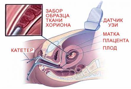 Изображение №3: 10 неделя беременности - ЭКО-блог