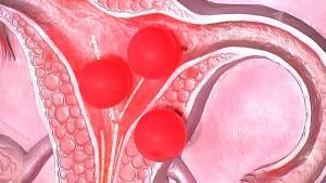 Изображение №1: Гематометра или скопление крови в полости матки - ЭКО-блог
