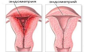 Изображение 1: Гиперплазия эндометрия - ЭКО-блог