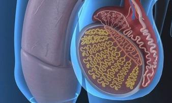 Изображение 2: Гипоплазия яичек - ЭКО-блог