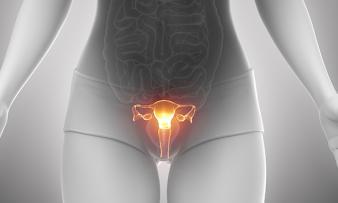 Изображение 1: Дисплазия шейки матки - ЭКО-блог
