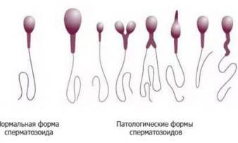 Изображение 1: Тератозооспермия - ЭКО-блог