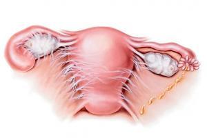 Спайки в малом тазу: симптомы, лечение, спайки после кесарева сечения