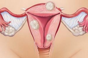 Изображение : Узловая миома матки - ЭКО-блог