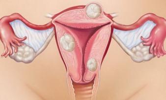 Изображение 2: Узловая миома матки - ЭКО-блог