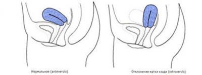 Изображение №0: Загиб матки и беременность - ЭКО-блог