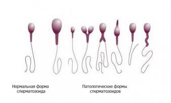 Изображение 2: Астенозооспермия - ЭКО-блог