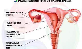 Изображение 2: Внутренний эндометриоз - ЭКО-блог