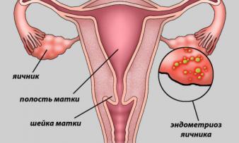 Изображение 1: Наружный эндометриоз - ЭКО-блог