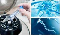 Изображение №3: Банки спермы - ЭКО-блог