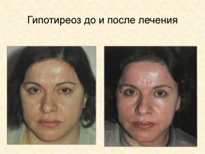 Изображение №0: Тиреотропный гормон повышен - что это значит для женщины? - ЭКО-блог