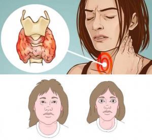 Изображение №2: Тиреотропный гормон повышен - что это значит для женщины? - ЭКО-блог