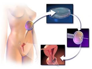 Изображение №1: Репродуктивные технологии - ЭКО-блог