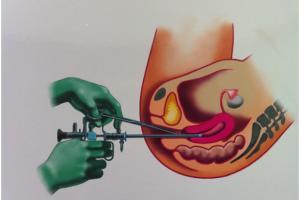 Изображение №0: Гистероскопия матки - что это? - ЭКО-блог