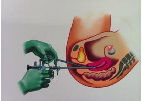 Гистероскопия матки - что это? - ЭКО-блог