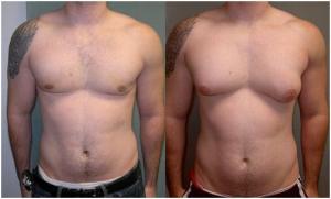 Изображение №0: Гормональные заболевания у мужчин - ЭКО-блог