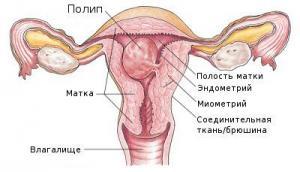 Изображение 1: Полип эндометрия - ЭКО-блог