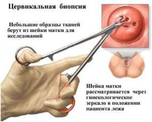Изображение №1: Биопсия шейки матки - ЭКО-блог
